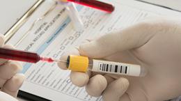 HIV検査普及週間